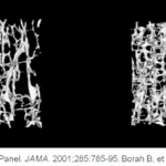Comparing structure of bones with osteoperosis (right) to healthy bones (left)